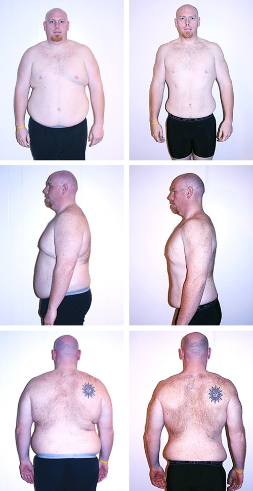 Chiropractic Ridgeland MS Before and After Man