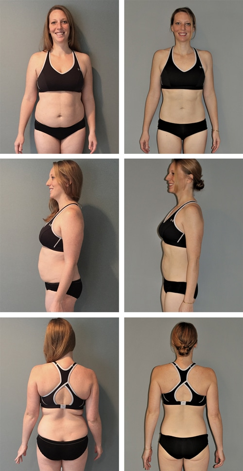 Chiropractic Ridgeland MS Weight Before and After