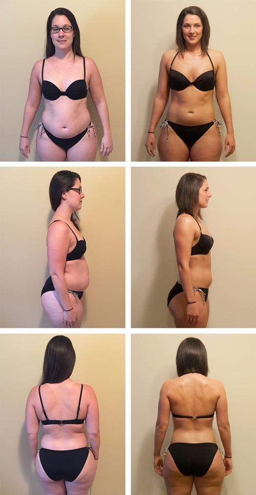 Chiropractic Ridgeland MS Weight Loss